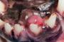 Preguntas frecuentes: Masas orales y úlceras