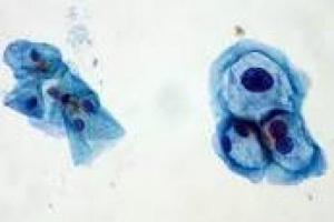 Virología básica - Un prefacio